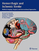 Hemorrhagic and Ischemic Stroke: Medical, Imaging, Surgical and Interventional Approaches [With Web Access]